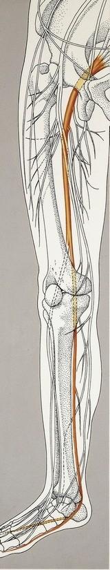 כאב גב תחתון עם הקרנה לרגל